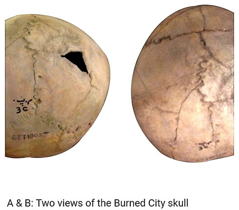 Two views of the skull that was operated on in Shahre Sukhte